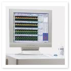 Транкраниальная доплеровская система Cranius 2700