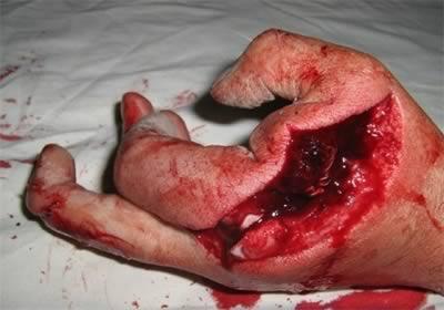 ранение кисти руки болгаркой