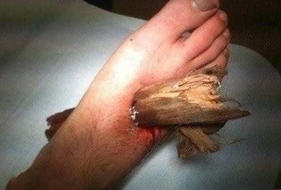 ранение стопы веткой дерева