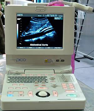 УЗИ- сканер Pico