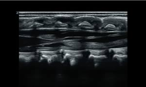 Продольное изображение «конского хвоста» у новорожденного.