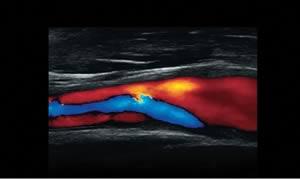 L14-5w. ЦДК кровотока в проксимальной части внутренней сонной артерии